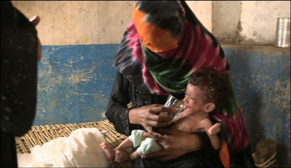 Hundreds of thousands Yemeni children face starvation 9