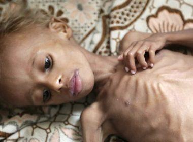 Hundreds of thousands Yemeni children face starvation 10