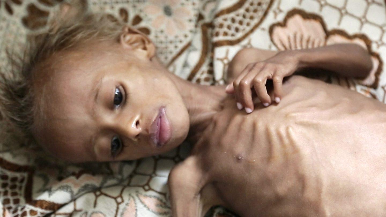 Hundreds of thousands Yemeni children face starvation 8